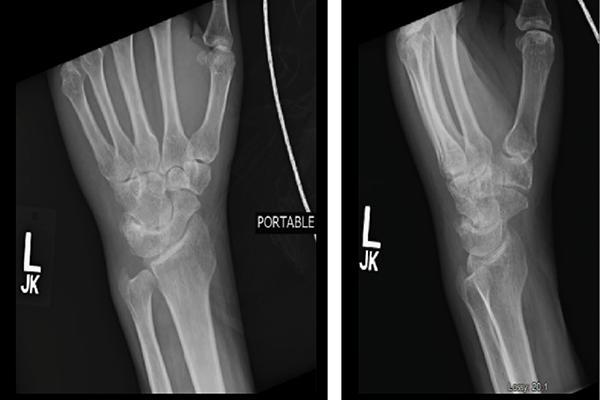 Figures 3 & 4: X-rays of the Left Wrist