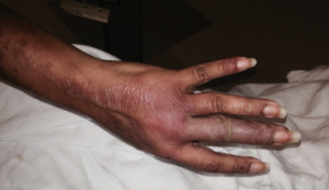 Figure 1: Bullous lesions on the finger extending to the elbow.