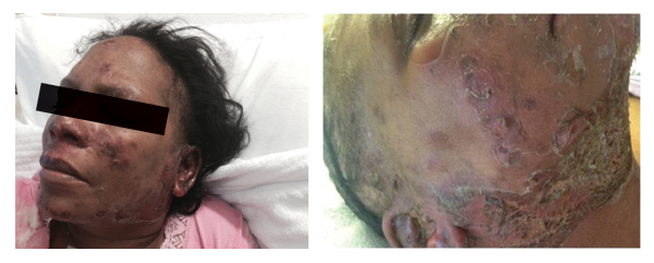 Figures 2a and 2b: Vesiculo-bullous lesions on the face and neck after the patient received steroids on admission.