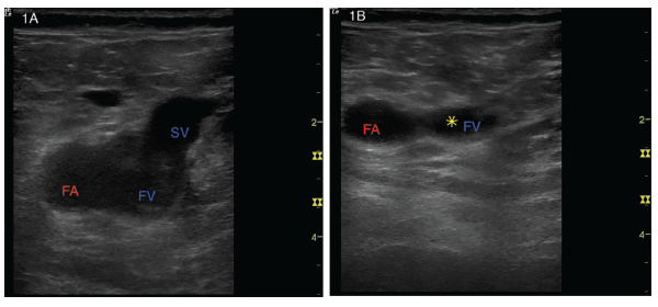 Figures 1A and B: (Left) A transverse view of the right common femoral artery (FA), right common femoral vein (FV) and right saphenous vein (SV). (Right) With gentle probe pressure, the saphenous vein collapses easily, but the common femoral vein is noncompressible. The yellow star represents the clot preventing collapse.