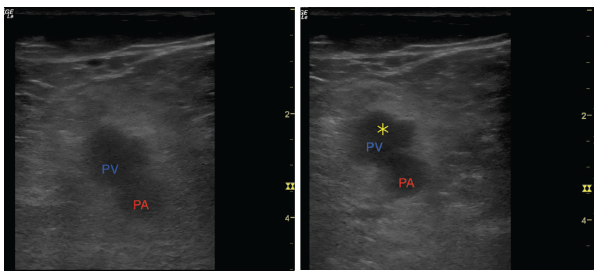 Figures 2A and B: (Left) A transverse view of the popliteal artery (PA) and popliteal vein (PV). (Right) Light compression with transducer shows an inability to collapse the popliteal vein. The yellow star represents the clot preventing collapse.
