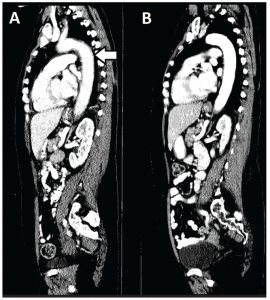 Figure 2: A sagittal CT image of the chest, abdomen and pelvis reveals the extent of aortitis (white arrow) at time of presentation (Panel A) and one month later with systemic corticosteroid therapy (Panel B).