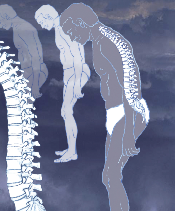 An illustration of ankylosing spondylitis, which commonly affects the joints between the spinal bones and the sacroiliac joints, which link the spine to the pelvis. The joints become painful and stiff. In severe cases, the vertebrae may fuse together completely. The condition is treated with painkillers and regular exercise.