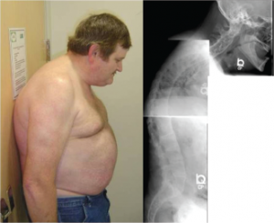 This 48-year-old man with ankylosing spondylitis has marked restriction in cervical spine range of motion. The composite of the cervical, thoracic and lumbar spine radiographs show syndesmophytes bridging adjacent vertebrae throughout the spine.