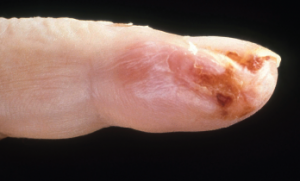 Current guidelines are inadequate to incorporate vasculitic syndromes involving skin.