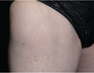 Close-up of the thigh of a 67-year-old female patient with focal myositis of unknown cause.