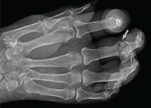 Figure 2: Radiograph of the Right Hand