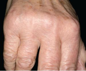 Close-up of the hand of a 68-year-old male patient affected by osteoarthritis