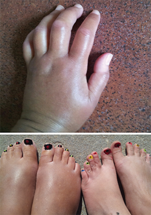 Ms. Gould was diagnosed with systemic sclerosis in 2015. These photos show her hands and feet (left) prior to the transplant.