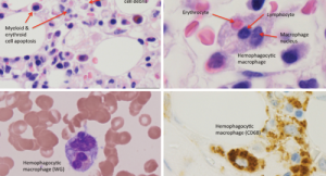 Fellows' Forum Case Report: Hemophagocytic Lymphohistiocytosis
