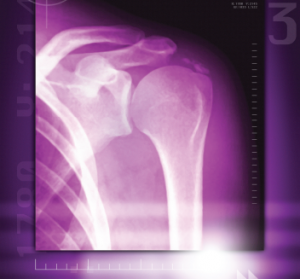 A colored X-ray of a calcified shoulder joint reveals a deposit of calcium at the top right of the shoulder joint.