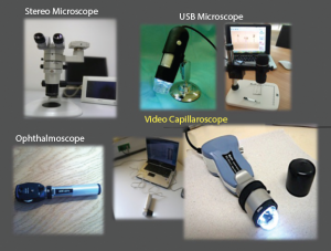 Different tools for nailfold capillaroscopic analysis.