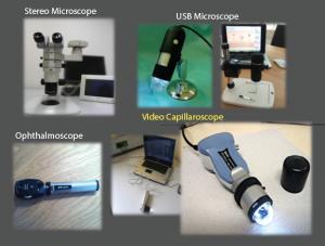 Different tools for nailfold capillaroscopic analysis.