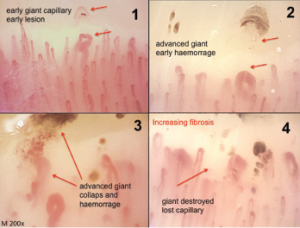 Classical morphological changes of the microvessels (irreversible and pathological) that identify different steps of the sclerodermic microangiopathy (magnification 200X).