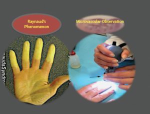 Raynaud's syndrome.