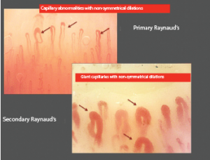 Early structural changes in a patient with Raynaud's phenomenon (left picture) that should identify very early alterations of the microvessels (dilations under 50 micrometers). The subsequent early morphological changes that identify the secondary associated systemic sclerosis are the presence of symmetrical dilations over 50 micrometers, called giant capillaries (right picture).