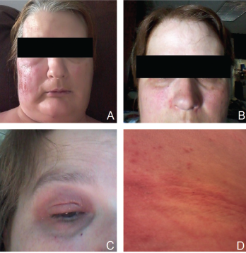 Patient's rash. A and B: swollen and erythematous patches with maculopapular changes on the face; C: eyelid swelling with discoloration; D: erythematous patches and plaques on abdominal wall.