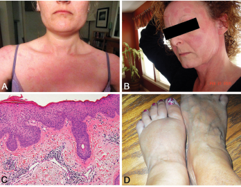 A and B: erythematous patches and plaques; C: spongiotic dermatitis (HE staining, 20X: epidermal hyperplasia with spongiosis and overlying hyperkeratosis and parakeratosis, as well as perivascular lymphocytic infiltrate); D: distal extremity swelling.