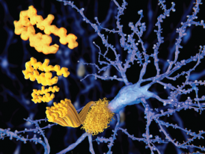 The beta amyloid peptid, amyloid plaques growing on a neuron.