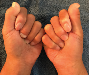 Figure 1: The first and second digits still lack full flexion range of motion. However, the remaining digits can flex into the palm to make a fist, which was not possible prior to continuous heated glove use.