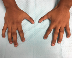 Figure 1. Bilaterally, the hands demonstrate hypoplasia of distal phalanges, hypoplastic nails and flexion of distal interphalangeal joints.