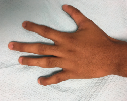Figure 3. This image of the left hand gives us a closer view of the fourth and fifth digits; however, the mild extension of the proximal interphalangeal joints is not well visualized in the picture.