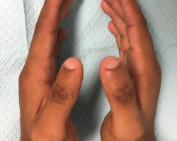 Figure 4. Bilaterally, the thumbs have a thinner-than-normal appearance, with hypoplastic nails.