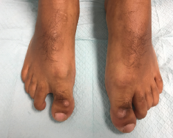Figure 5. Bilaterally, the feet have hypoplasia of the distal phalange