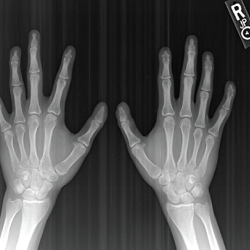 Figure 7. An X-ray of both hands—antero-posterior view—shows hypoplasia of the distal phalanges, which is more pronounced over the second and fifth digits.