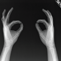 Figure 8. An X-ray of both hands—oblique view—shows hypoplasia of the distal phalanges.