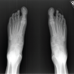 Figure 9. An X-ray of both feet—antero-posterior view—shows hypoplasia of the distal phalanges and subluxation of the distal interphalangeal joints.