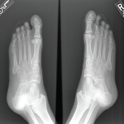 Figure 10. An X-ray of both feet—oblique view—shows hypoplasia of the distal phalanges.
