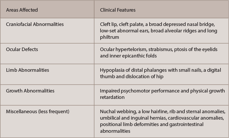 Table 1: Clinical Features of Fetal Hydantoin Syndrome2,3