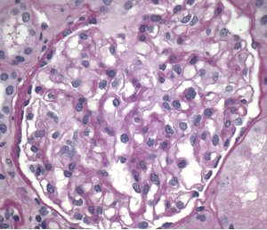 Figure 1. Normal glomeruli