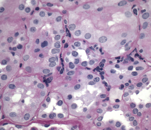 Figure 2. Interstitial inflammation