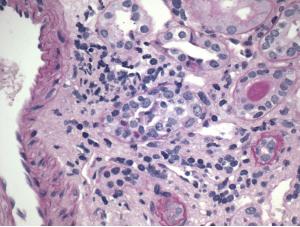 Figure 3. Tubulitis