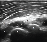 Figure 1. Ultrasound of the left elbow: anterior humero-radial longitudinal view. A large anechoic to hypoechoic collection (*) is present in the anterior elbow joint, which superiorly displaces the fatpad (F) and the brachialis muscle (B). This collection extends proximal to the humeral capitellum (C) into the radial fossa (left sided *) and distal to the radial head (R) to the annual recess (right sided *). There is a hyperechoic linear band (arrow) over the superficial margin of the hyaline cartilage of the humeral capitellum.