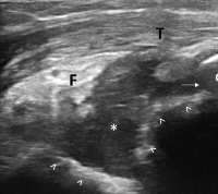Figure 3. Ultrasound of the left elbow: posterior longitudinal view. There is a large, anechoic to hypoechoic collection deep to the triceps muscle (T) in the olecranon fossa (*) and posterior elbow joint recess (arrow), which superiorly displaces the posterior fatpad (F). For landmarks, note the olecranon process (O), the humeral trochlea (arrows).