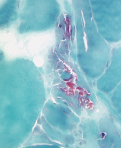 This acid phosphatase stain of Patient 2's muscle biopsy shows large numbers of necrotic fibers (highlighted in the center of the image).