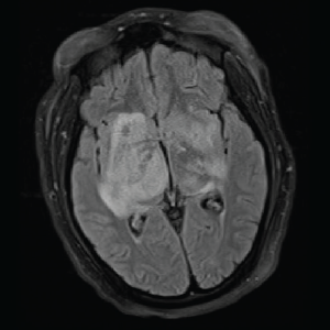 T2/FLAIR: Hyperintensities of the bilateral mesial temporal lobes extending into the right basal ganglia.