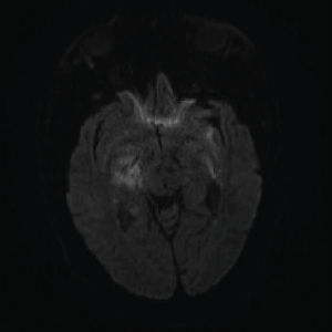 DWI: Extensive abnormal signal with patchy areas of restricted diffusion, particularly in the right basal ganglia and bilateral mesial temporal lobes.