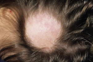 Hair loss is commonly seen in lupus patients, but not all alopecia types are the same.