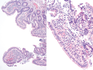 Duodenum biopsy showing partial villous atrophy with borderline increase in intraepithelial lymphoctyes.