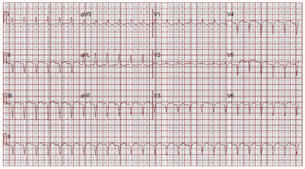 Figure 2: ECG on Admission