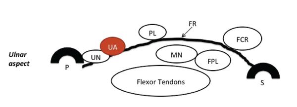 Figure 1: A schematic of normal carpal tunnel anatomy. FR = flexor retinaculum; PL = palmaris longus tendon; FCR = flexor carpi radialis tendon; FPL = flexor pollicis longus tendon; MN = median nerve; UA = ulnar artery; UN = ulnar nerve; P = pisiform bone; S = scaphoid bone. Reprinted with permission from Greenberg MH. Manual of musculoskeletal ultrasound protocols (2018).