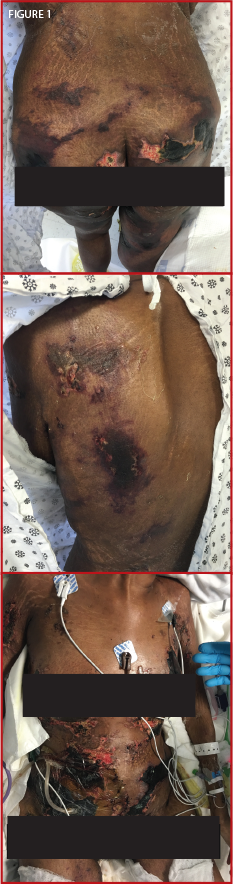 Figure 1. The patient presented confluent, hyperpigmented plaques over her thighs, buttocks, back, breasts and abdomen.