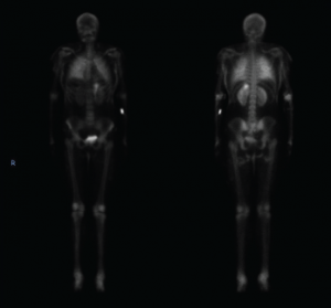 Figure 3. This nuclear bone scan shows uptake in bilateral lungs, soft tissues of the upper and lower extremities, and the stomach.