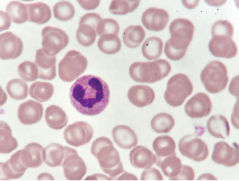 A neutrophil in a blood smear.
