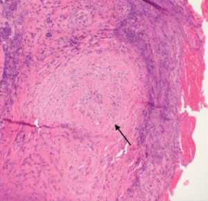 Figure 1. A nasal biopsy shows intimal infiltration of the small blood vessels (black arrow).