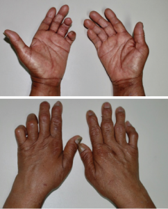 Figures 1 and 2: These images shows the patient's bilateral ulnar deviation and benediction deformity of the left hand.